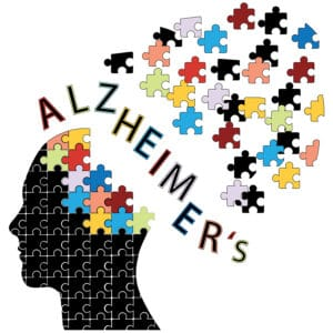 Alzheimer's: Puzzle pieces falling away from a head.