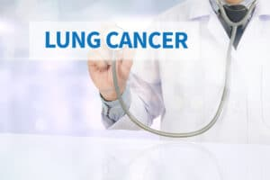 Elder Care in Dacula GA: Lung Cancer Treatment Risks