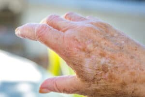 Caregiver in Oakwood GA: Dry Skin