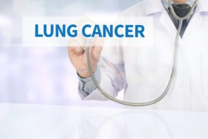 Elderly Care in Braselton GA: Signs and Symptoms of Lung Cancer